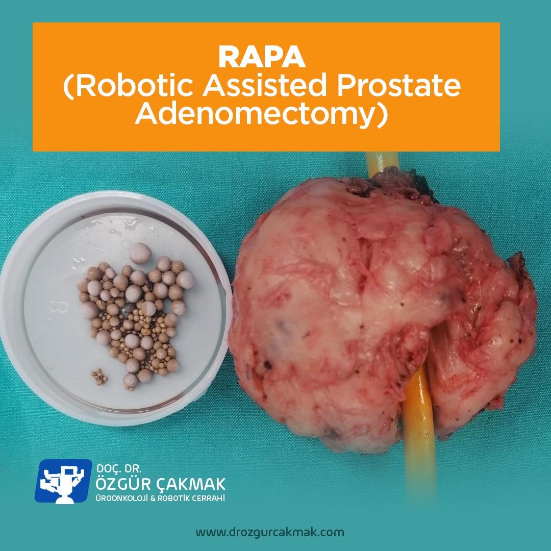 Robotik Prostat Adenomektomi